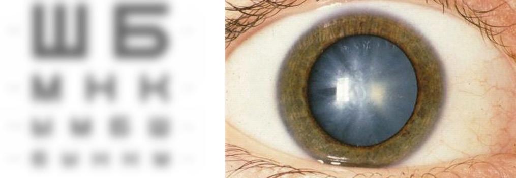 Как развивается катаракта и чего следует опасаться?