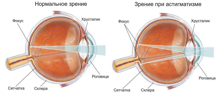 Коррекция зрения г челябинска