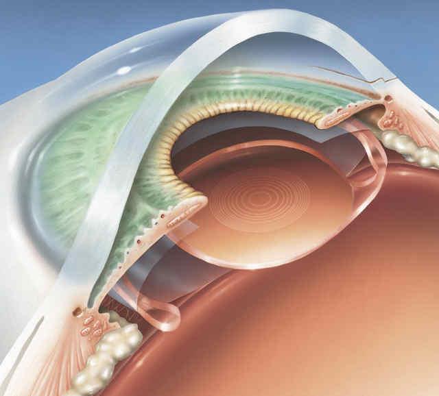 Операция на глаз астигматизм цена
