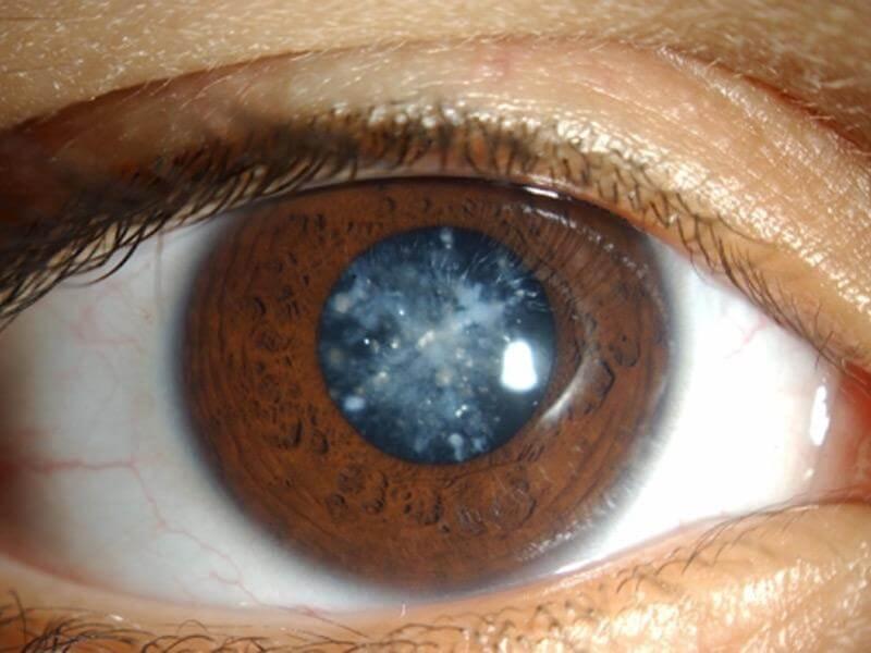 признаки одновременного проявления глаукомы и катаракты