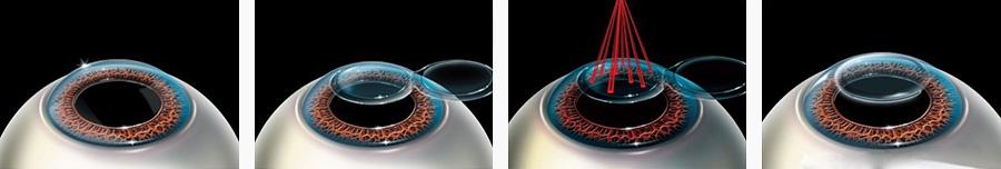 как происходит лазерная коррекция зрения