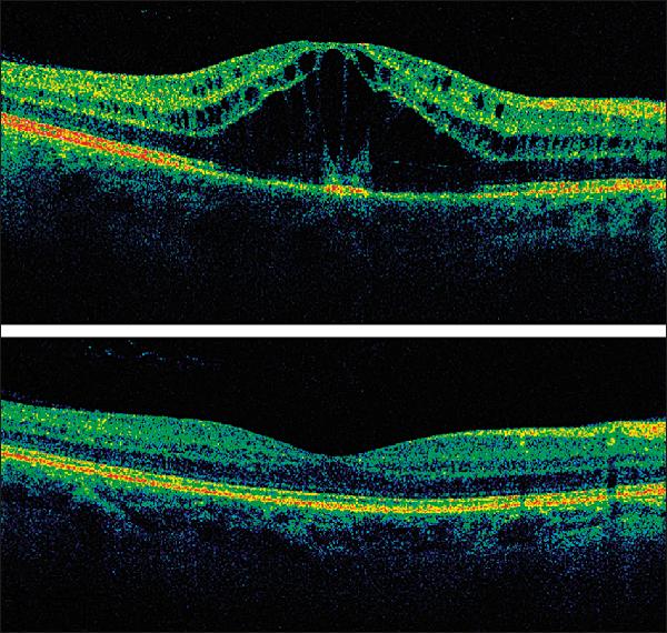 Глаз орган зрения для детей