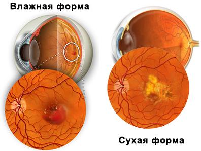 Купить очки тренировочные для зрения